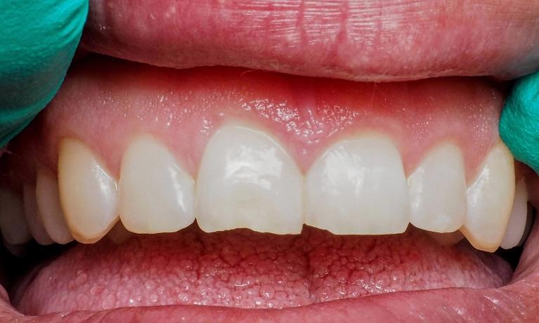 Tooth-Colored-Fillings-to-Repair-Broken-Teeth-Before-Image