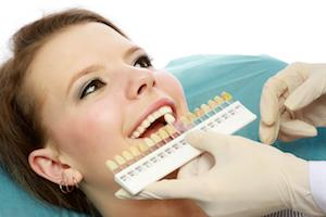 Tooth whitening patient | Kingsport, TN