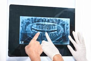 Dental X-Ray | Kingsport, TN Dentist