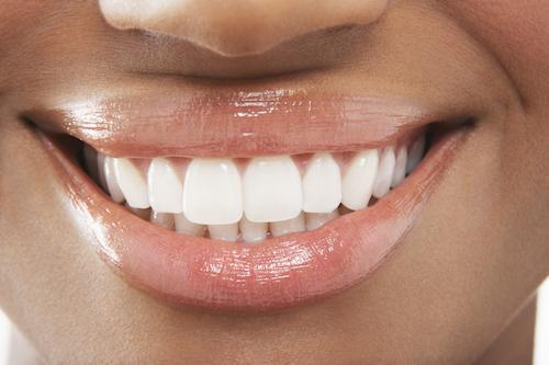 teeth whitening | kingsport tn