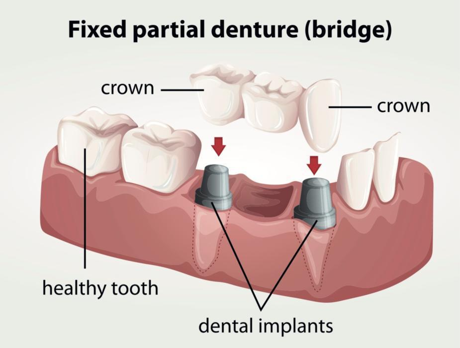 image of a dental bridge in kingsport tn