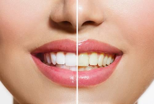 teeth whitening | professional teeth whitening | kingsport tn