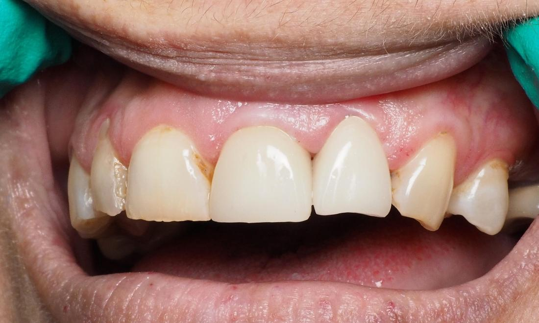 Fixing Broken and Decayed Front Teeth