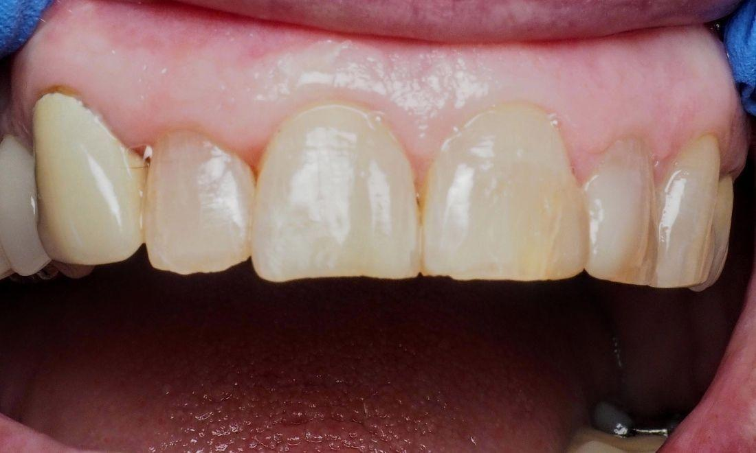 Restoring Multiple Front Teeth