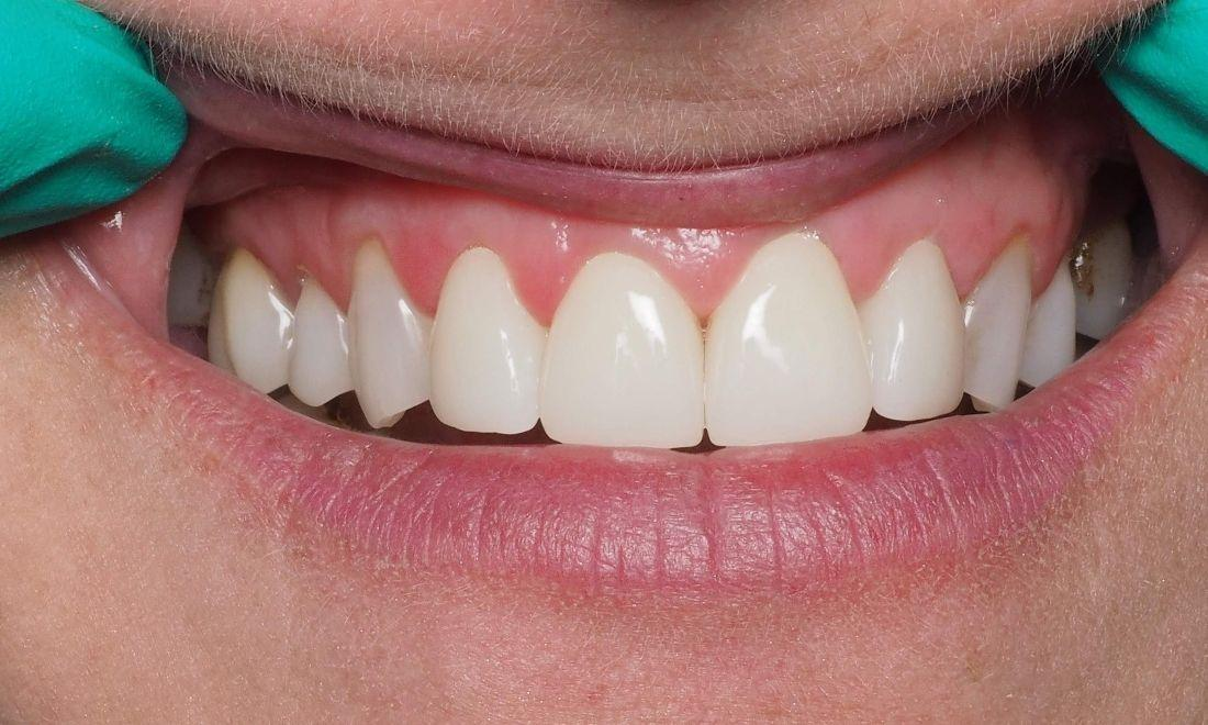 After Worn and Chipped Front Teeth | Kingsport, TN | Hagan Dentistry