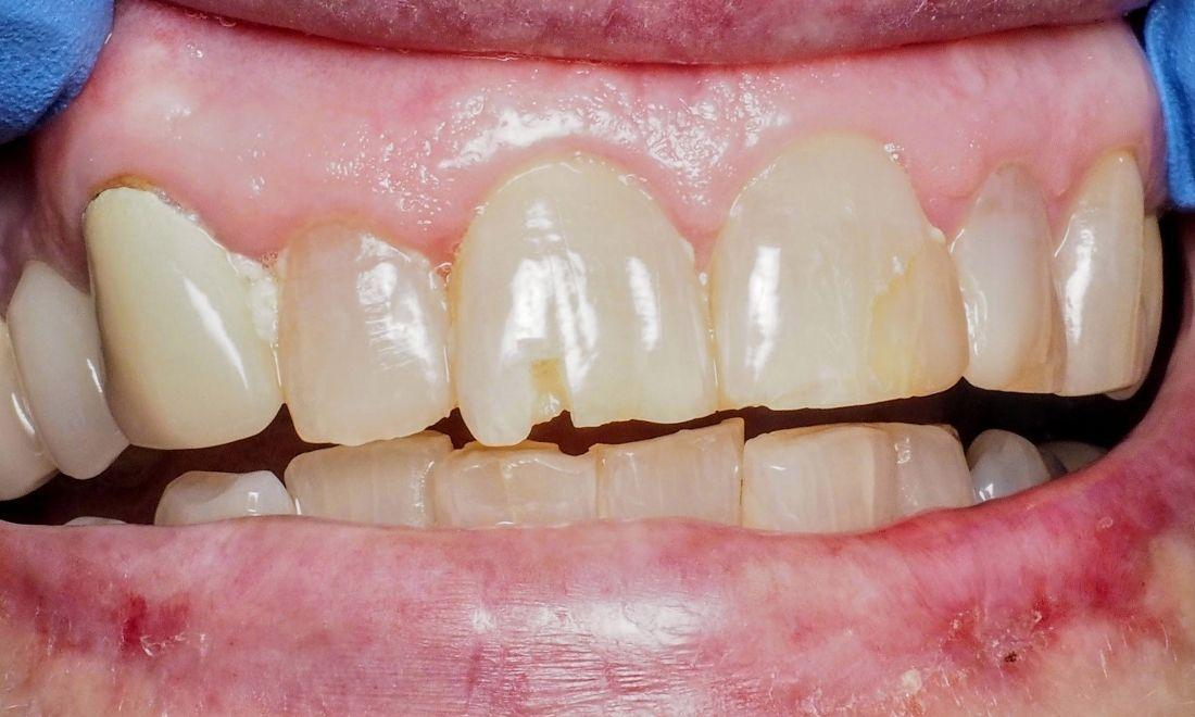 chipped tooth | Tooth-Colored Fillings in Kingsport TN | Hagan Dentistry