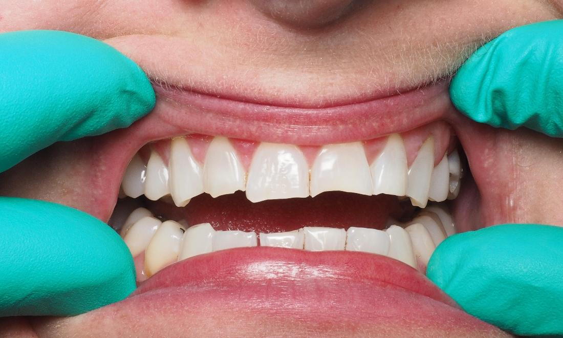 Worn and Chipped Front Teeth | Kingsport, TN | Hagan Dentistry