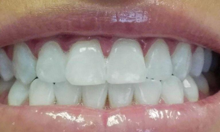 In-Office-Whitening-After-Image