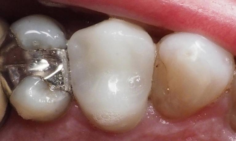 Replacing-a-Broken-Porcelain-Metal-Crown-with-an-All-Ceramic-Crown-After-Image
