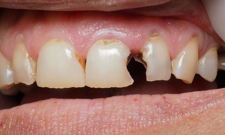 Fixing-Broken-and-Decayed-Front-Teeth-Before-Image