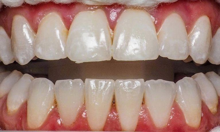 In-Office-Whitening-Before-Image