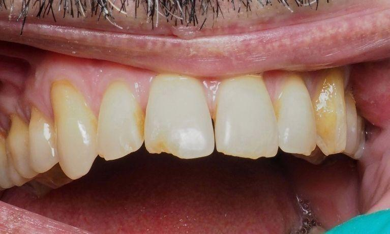 Restoring-Multiple-Front-Teeth-Before-Image