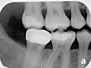 Digital X-rays | Hagan Dentistry